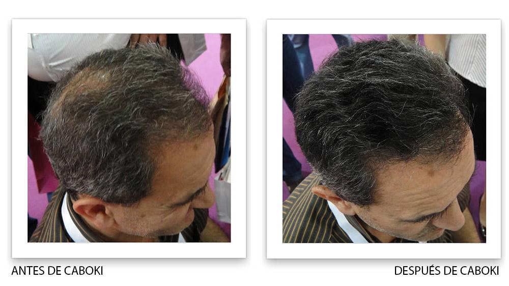 antes y despues de caboki